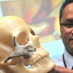 Implante fabricado en 3D reconstruye el rostro de una mujer