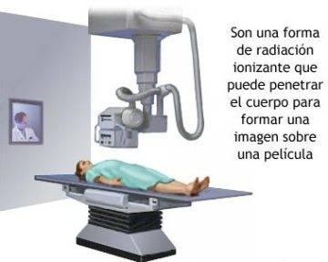Máquina de rayos X, Considerado como el Invento más Importante