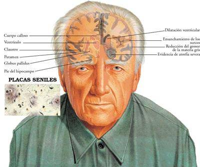 Uso del Celular podría Defendernos de los Efectos del  Alzheimer
