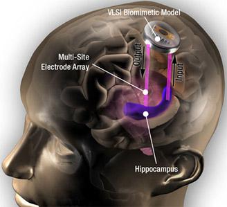 Moderno Implante cerebral restaura y mejora la formación de la memoria