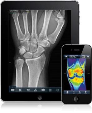 VueMe de MIM: Software que permite a pacientes ver sus imágenes médicas a distancia