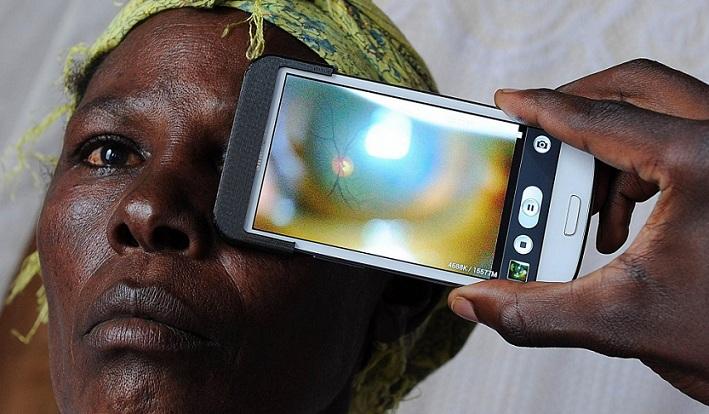 Eye-Phone: el Smartphone con tecnología para el diagnóstico de enfermedades oculares
