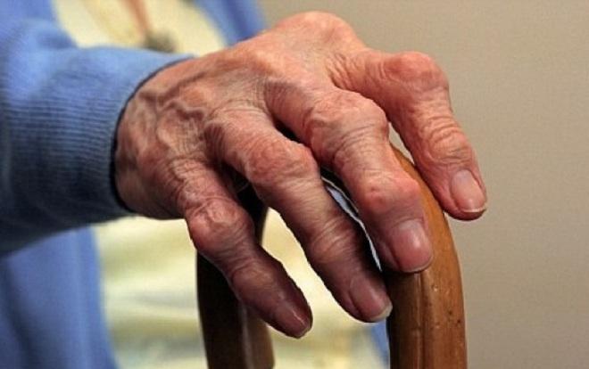Ciertas bacterias intestinales podrían ser la causa de la artritis
