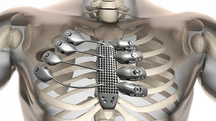 Implantan las primeras costillas metálicas hechas en una impresora 3D