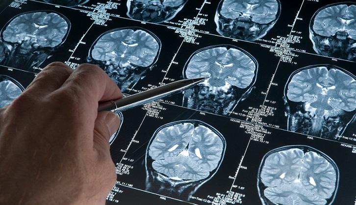 Científicos descubren una molécula que destruye la proteína del Alzheimer